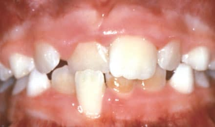 Crossbite of Front Teeth