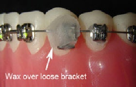 Wax Over Loose Bracket